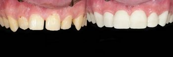 Veneers1_beforeafter1